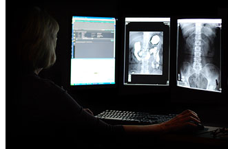 Digital Radiology - Hoag